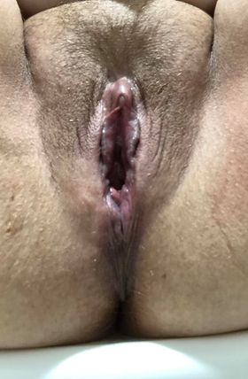 photo of an unshaven vulva post pregnancy and birth